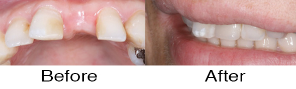 Dentexcel_Dental_Implant5.jpg