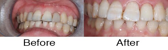 Dentexcel_Dental_Implant6.jpg