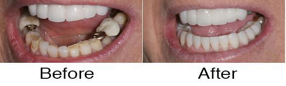 Dentexcel_Veneers1.jpg