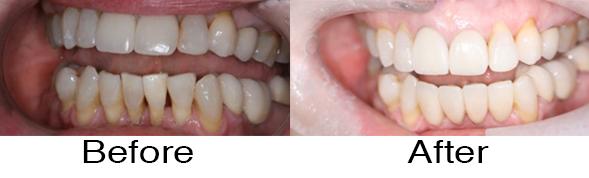 Dentexcel_Veneers5.jpg