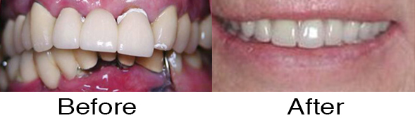 Dentexcel_Natalie_Kremouti6.jpg