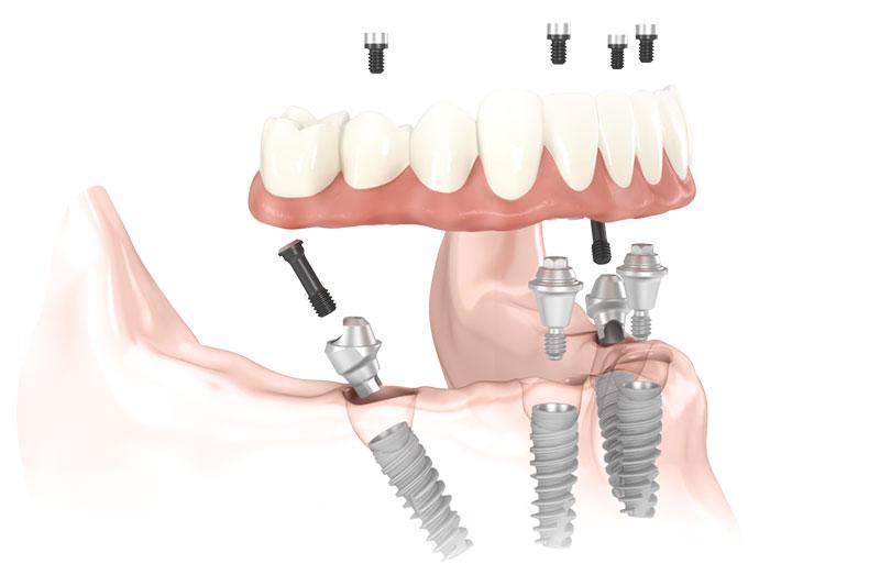 Dentexcel All On 4 Implants