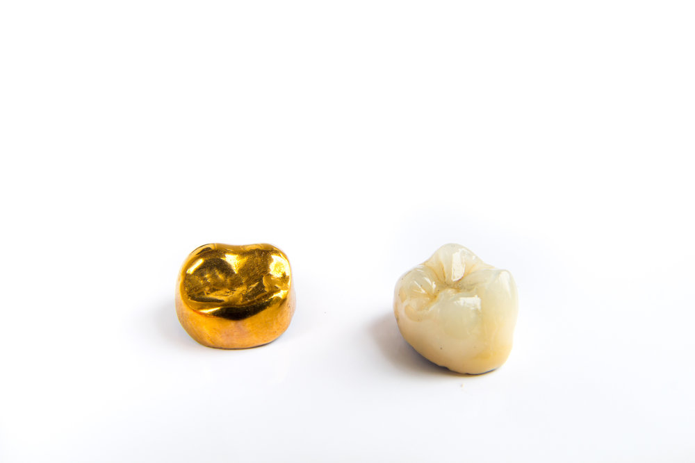 Gold Crown (cap) & Porcelain Crown (cap)