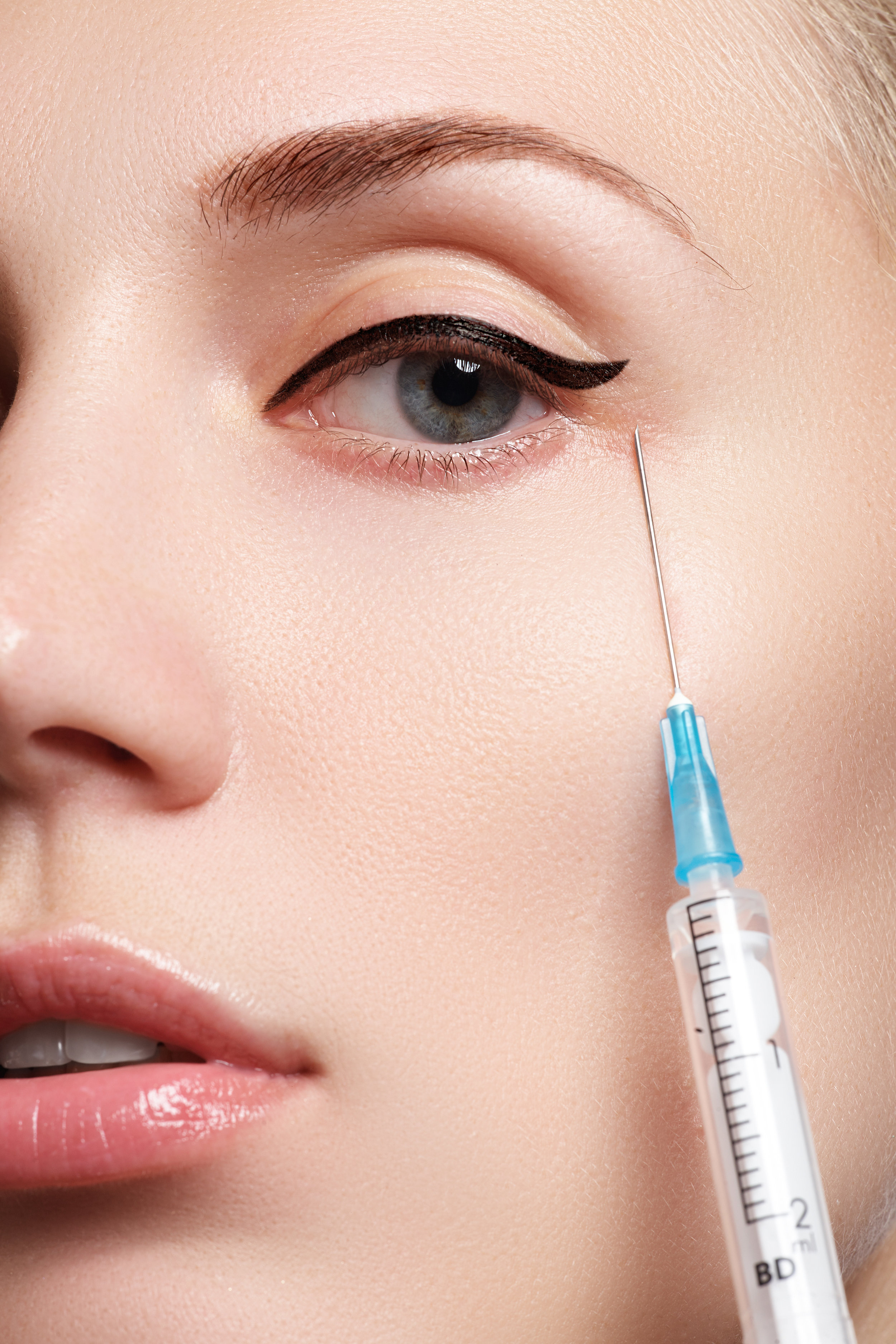 My Experience with Under-eye Dermal Fillers — LIFE OF JENNA