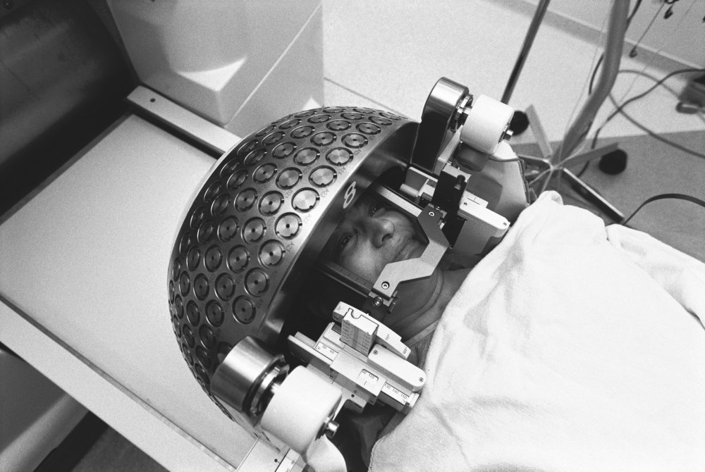 A patient receiving Gamma Knife surgery. I had my gamma knife surgery.