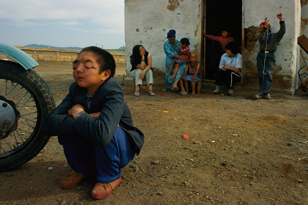 Nuclear fallout from the Semey test site has resulted in a plague of birth defects. Now 13, this boy, who actually lives on the test site, was born blind and disfigured.  Semey, Kazakhstan