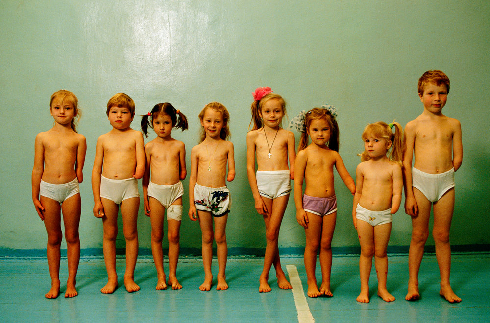 These children, all from two city neighborhoods, were born with missing forearms. Many scientists suspect their congenital deformities to be caused by Moscow's bewildering mix of pollutants.  Moscow, Russia