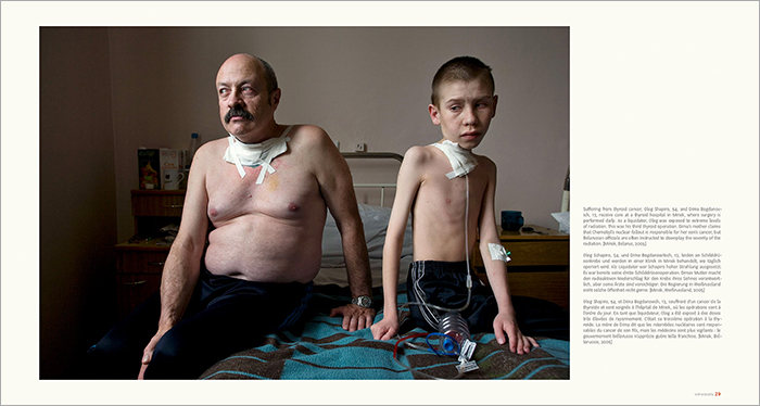 THE VICTIMS:  At the core of Ludwig's photographs are the people who continue to suffer this tragedy – they exposed their suffering in the hope of preventing future tragedies like Chernobyl.
