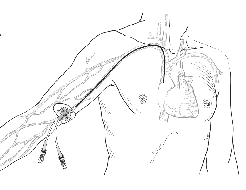 Figure 1: Peripherally inserted central catheter (PICC) (Memorial Sloan Kettering Cancer Center)