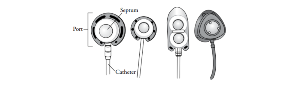 Figure 1. Different types of ports (MSKCC)