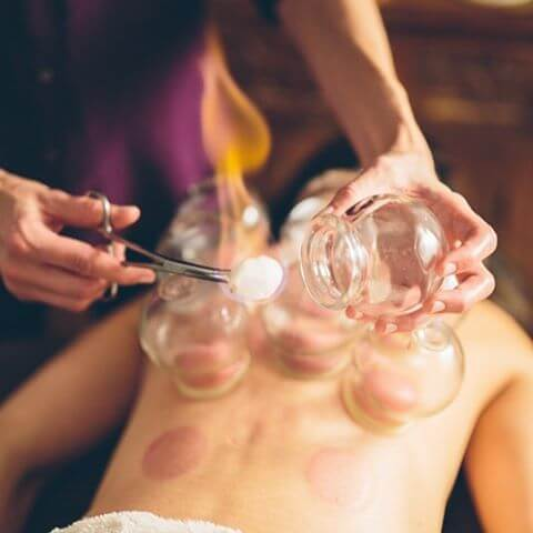 cupping-therapy-flourish.jpg