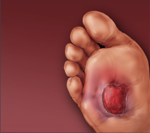 - Foot ulcer. Source: Vascular Health