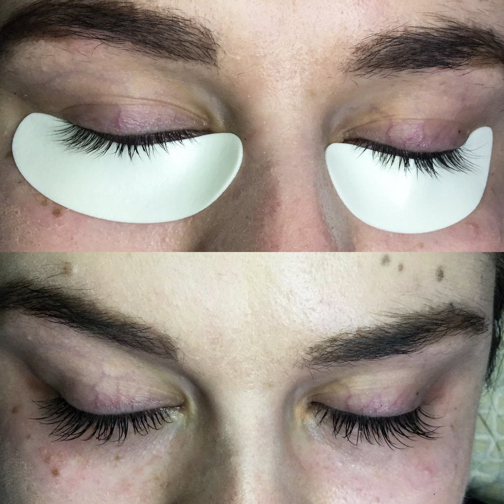 LASH FILLERS - BEFORE & AFTER