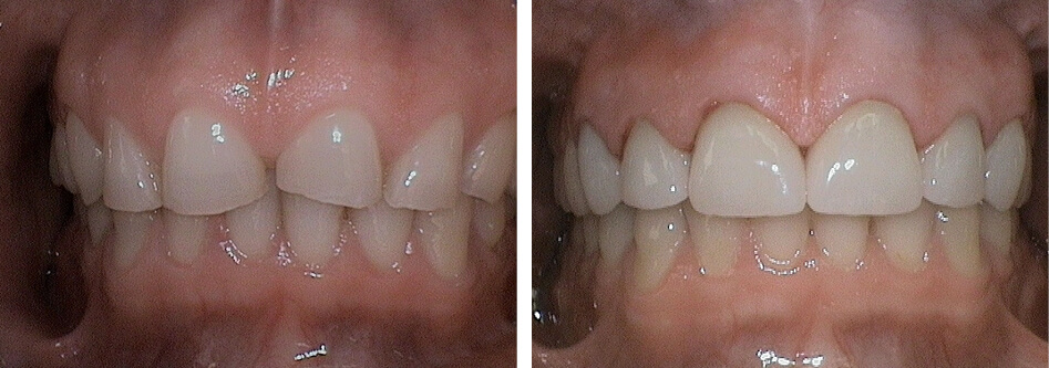 Before and after anterior crowns