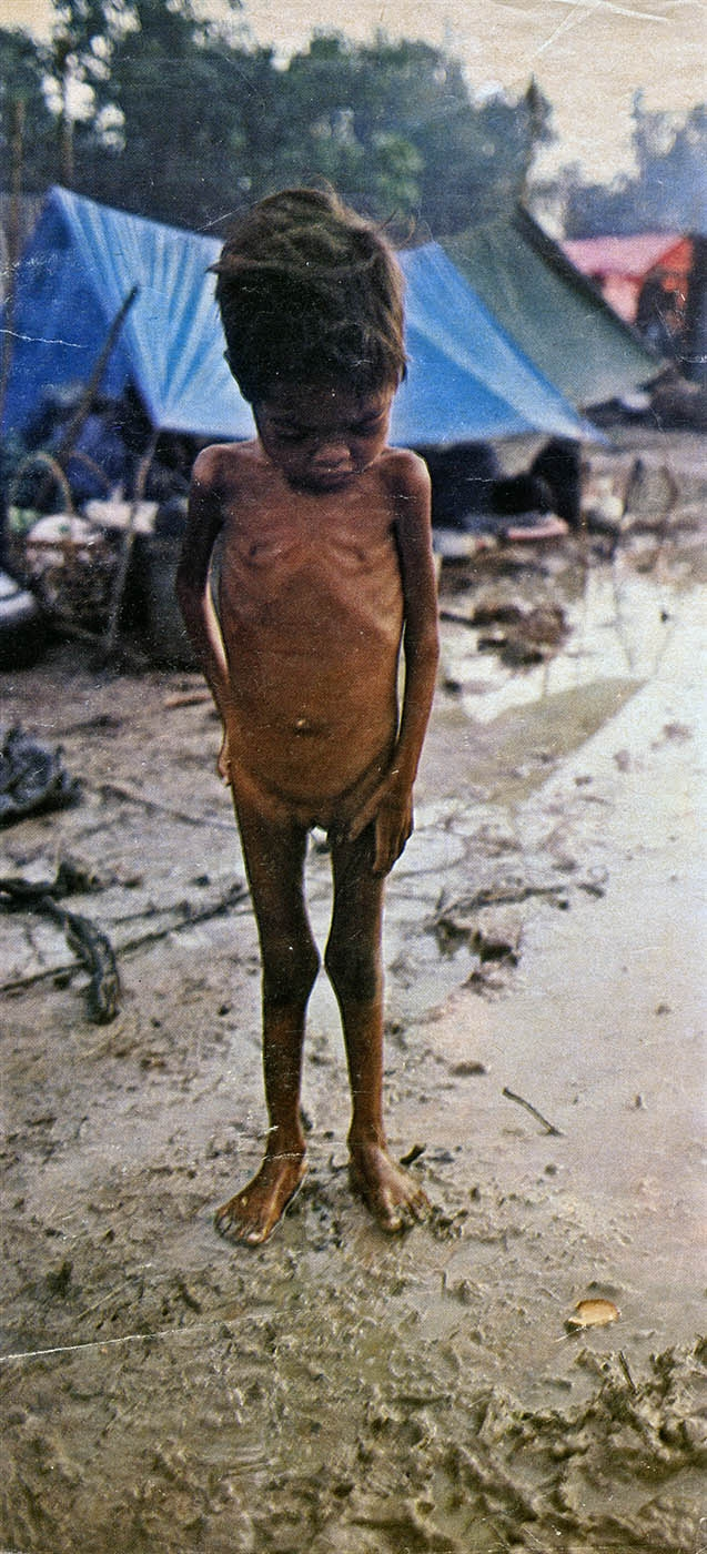 Starving Cambodian Child