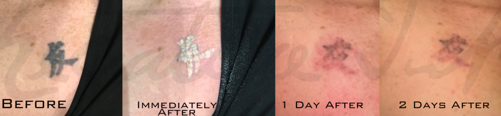 About the Process — Negative Ink - Tattoo Removal