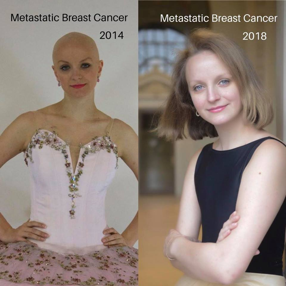 Invisible Disability Bald Ballerina Metastatic Breast Cancer .jpg