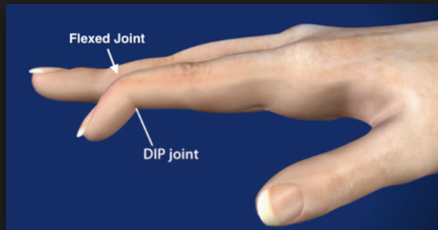 Mallet finger  refers to a drooping end-joint of a finger. This happens when an extensor tendon has been cut or torn from the bone. It is common when a ball or other object strikes the tip of the finger or thumb and forcibly bends it.