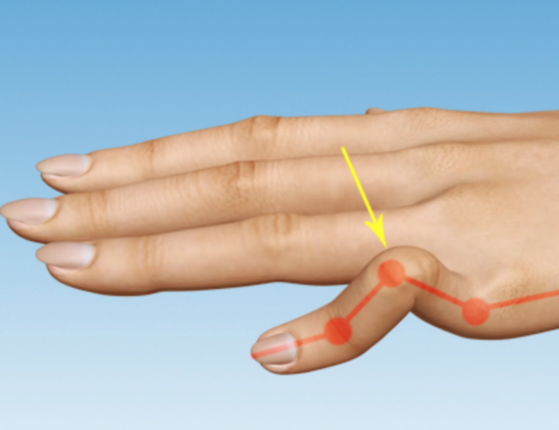 Boutonnière Deformity  describes the bent-down (flexed) position of the middle joint of the finger. Boutonniere can happen from a cut, tear or avulsion of the extensor tendon.