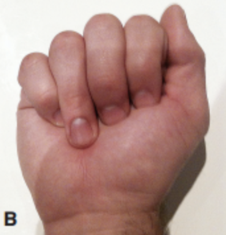 Jersey finger is when there is avulsion to the flexor digitorum profundus tendon at the distal phalynx. Note the ring finger's inability to fully bend.