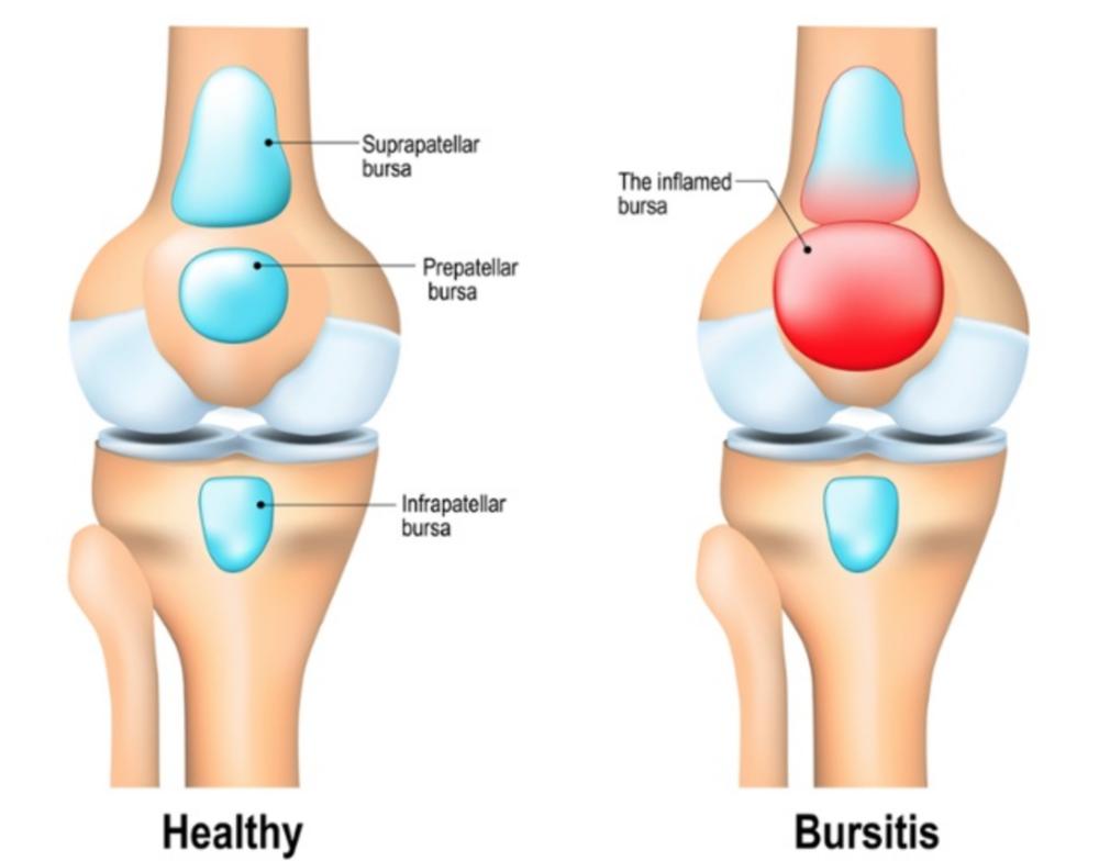 Kneeling Knee Pain Bjj Rehab