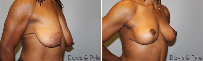Breast Lift • Without Implants (without implants)