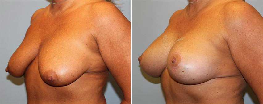 Breast Lift • With 235cc Silicone Implants
