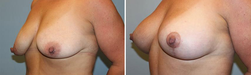 Breast Lift • With with 240cc Silicone Implants