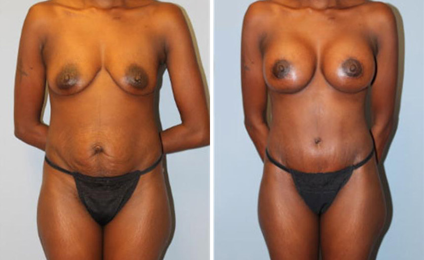 Breast Augmentation • Tummy Tuck • Liposuction