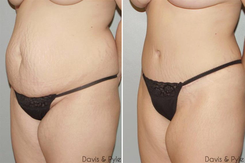 tummy-tuck-before-after-raleigh-1.jpg