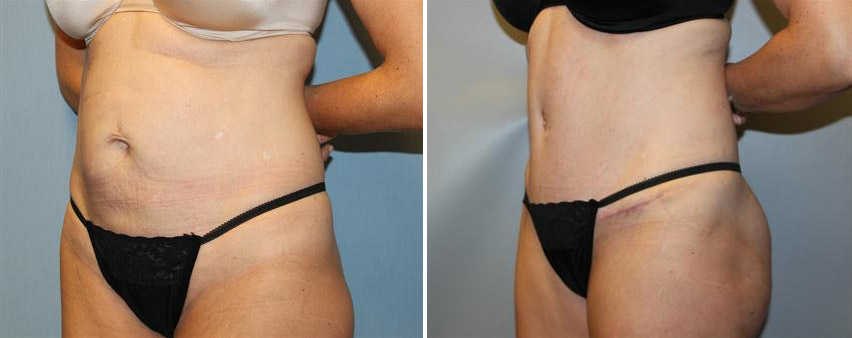 tummy-tuck-before-after-raleigh-4.jpg