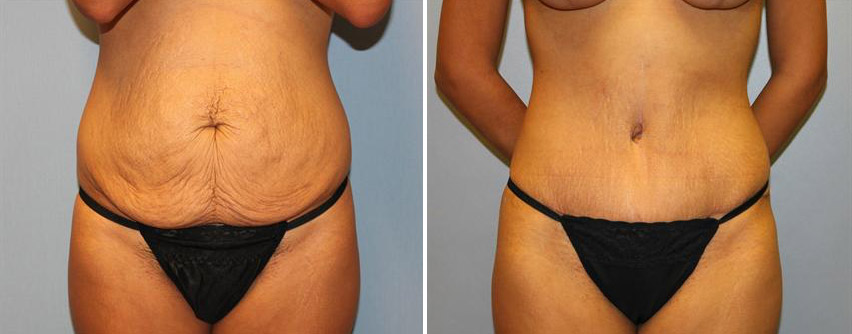 tummy-tuck-before-after-raleigh-17.jpg