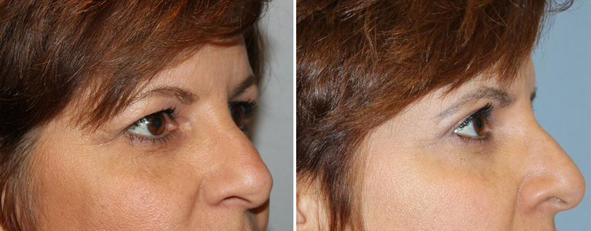 eyelid-blepharoplasty-before-after-raleigh-1.jpg