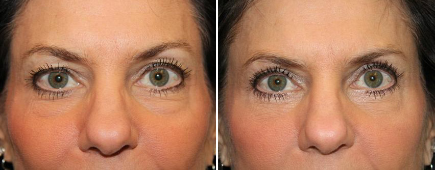 eyelid-blepharoplasty-before-after-raleigh-2.jpg