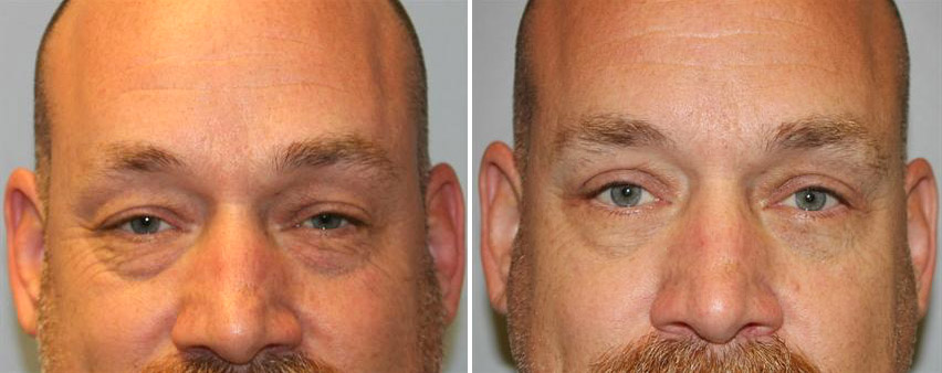 eyelid-blepharoplasty-before-after-raleigh-6.jpg