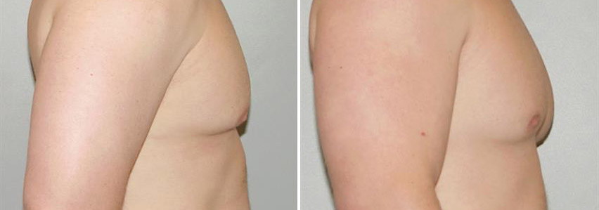 men-chest-fat-removal-gynecomastia-before-after-raleigh-3.jpg