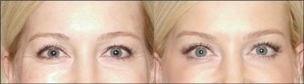 before.after crows feet botox
