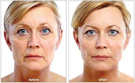 juvederm-voluma-before-after