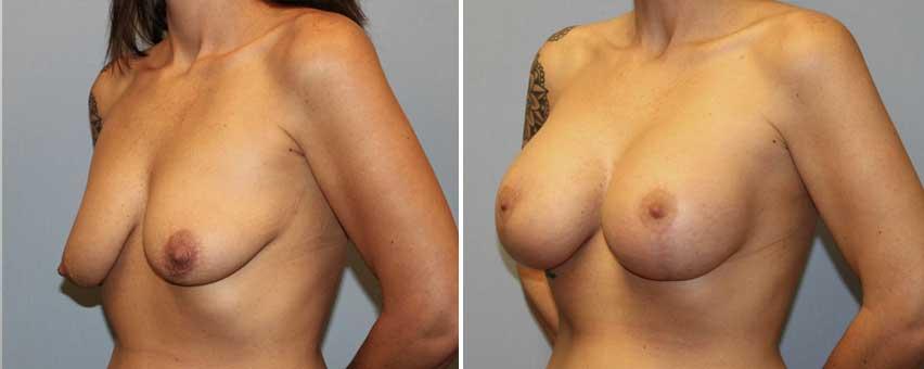 dr-glenn-davis-breast-lift-before-after.jpg