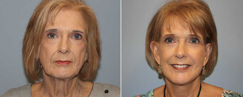 dr-glenn-davis-facelift-before-after.jpg