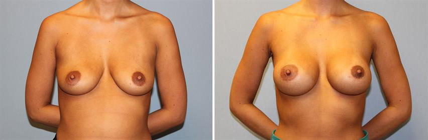 breast-implants-before-after-raleigh-15.jpg