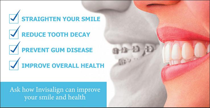 invisalign vs braces.png