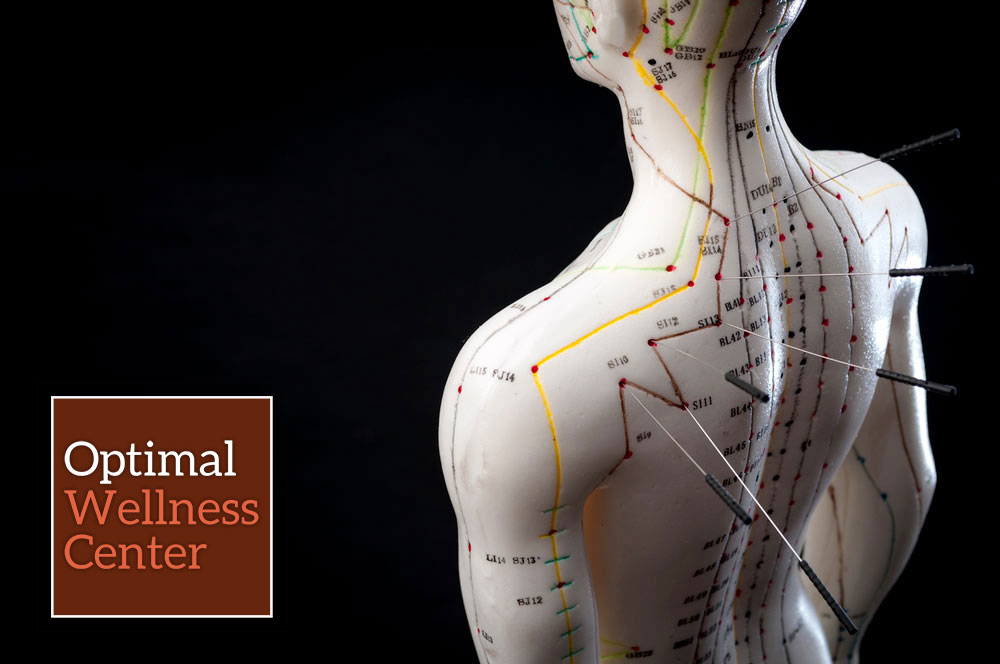 acupuncture-at-optimal-wellness-center-2.jpg