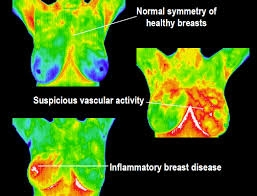debbie radvar thermography optimal wellness center