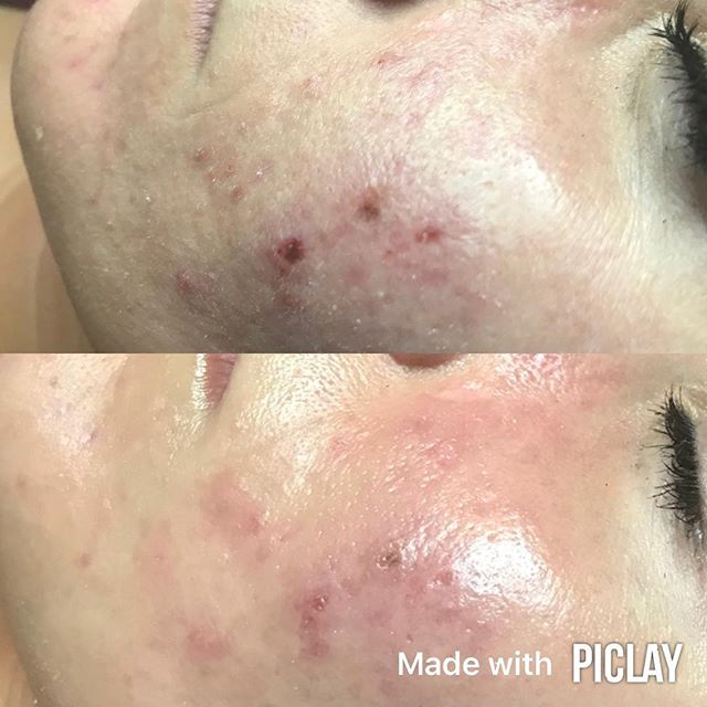 Acne rescue ! This is just one treatment #microdermabrasion #oxygenatingenzyme #dermaplane #highfrequency #blueled #cryotherapy #biojouvance #bioclarifying #acnetreatment #acne #acnescars #esthetician