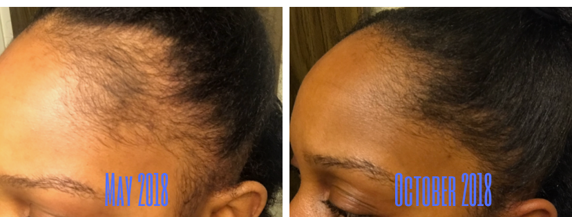 edge line hair loss
