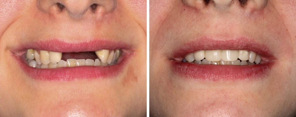 Temporary Implant Crowns - This patient was able to restore her smile in one day with three implants and temporary crowns. These crowns were attached to the implants and the patient did not have to wear a flipper or retainer to replace her missing teeth.