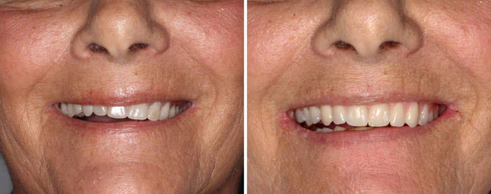Transitional Denture - This patient did not like the crooked look of her previous denture and could not tolerate the palate gagging her which is why she needed implants placed. We were able to place six implants for her, and give her a new transitional denture that corrected the crooked look and gave her natural looking teeth so she could smile with confidence while her implants heal.