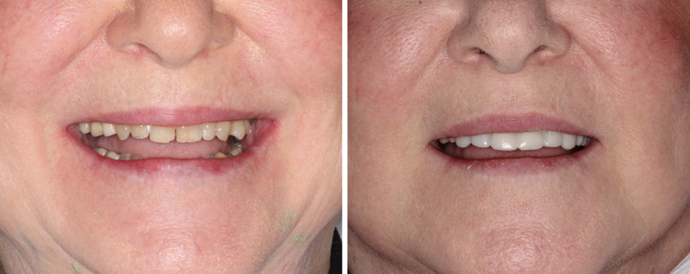 Smile Test Drive  This patient did not like her yellow, chipped teeth. In one day we were able to show her how her new smile would look with 8 new smile test drive crowns. These are only the temporaries!