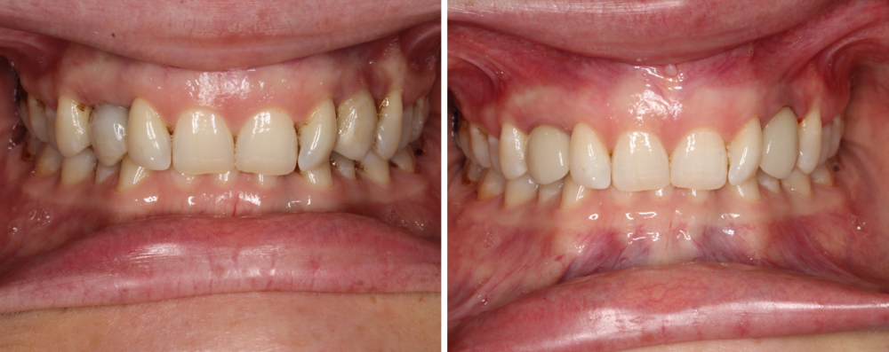 2 Implant Crowns - This patient's crowns were beginning to discolor and show some greyish hues. We were able to give her two new crowns so things could blend seemlessly.